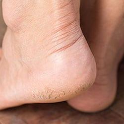 Cracked Heels Begone Featured